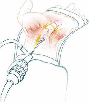 ενδοσκοπική θεραπεία σύνδρομο καρπιαίου σωλήνα