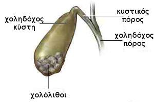 χολοκυστολιθίαση