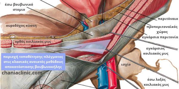 περιοχή τοποθέτησης πλέγματος σε βουβωνοκήλη με κλασικές ανοικτές μεθόδους