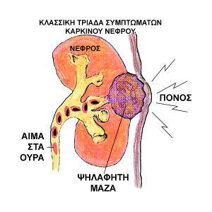 συμπτώματα καρκίνου νεφρού