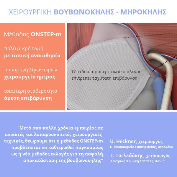 μεθοδος ONSTEP-m