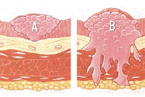 καρκίνος της ουροδόχου κύστης