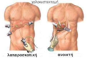 χολοκυστεκτομή