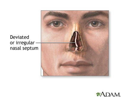 nasal-septum